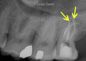 X-ray of root canal- Sachar Dental NYC