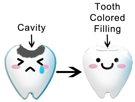 Diagram of dental cavity