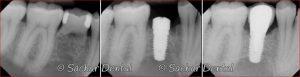 X-ray of dental implants done at Sachar Dental NYC