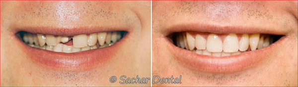 Before & After picture of a porcelain crown done at Sachar Dental NYC
