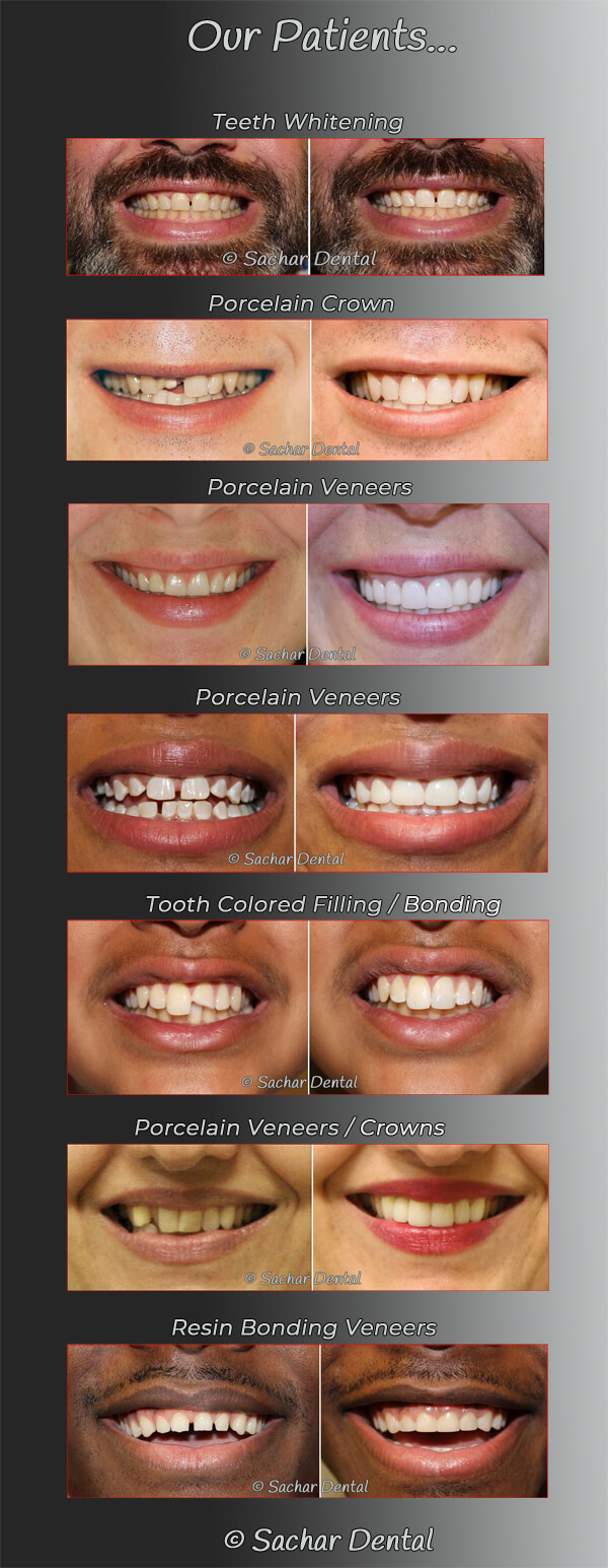 Cosmetic Dentist NYC before and after pictures
