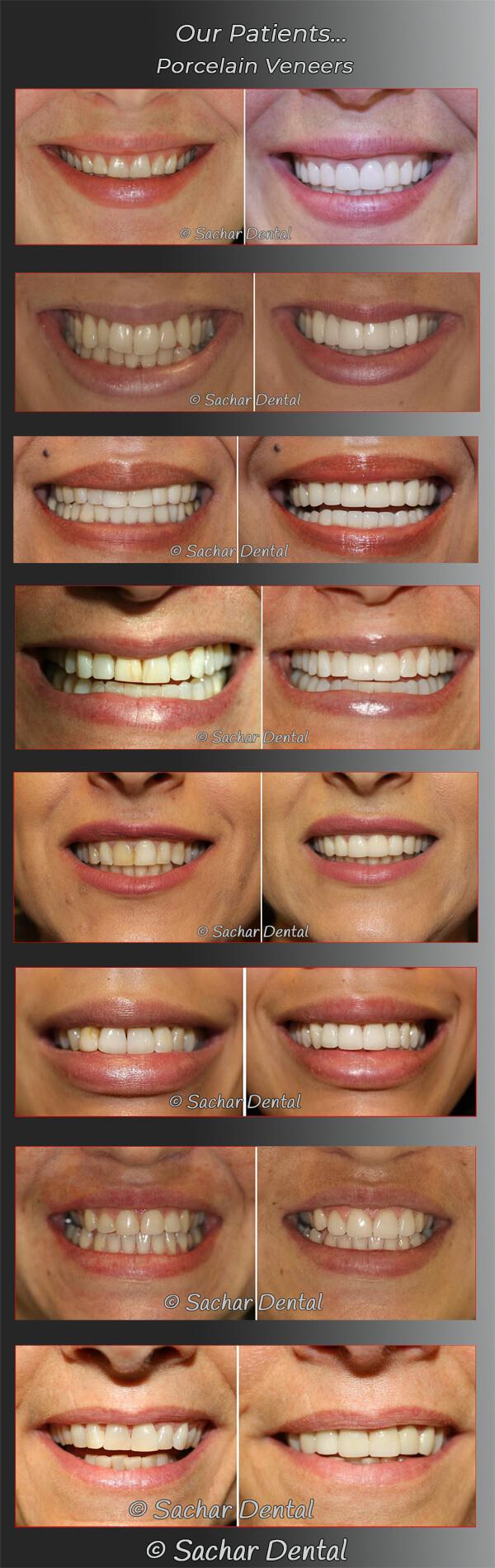 Cosmetic Dentist NYC for Porcelain Veneers