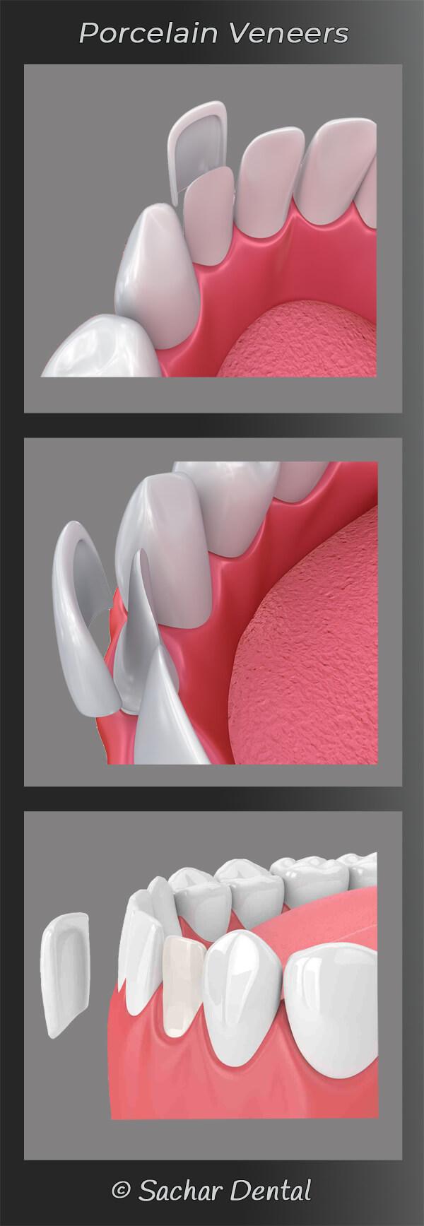 Cosmetic Dentist NYC porcelain veneers diagram