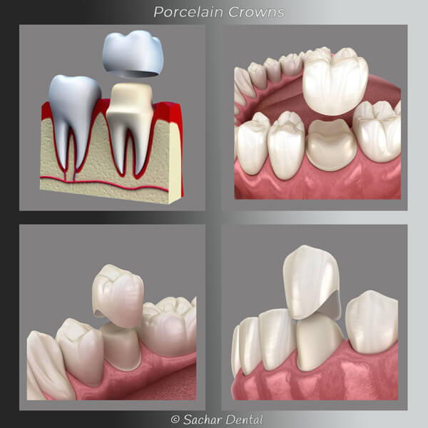 Porcelain crown diagram Sachar Dental NYC