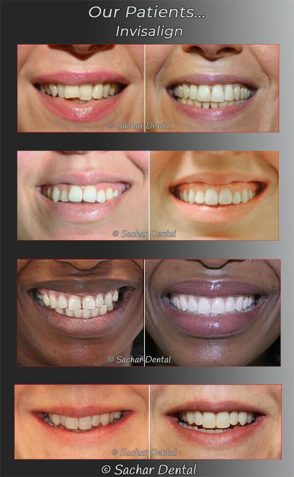Best Invisalign Dentist NYC