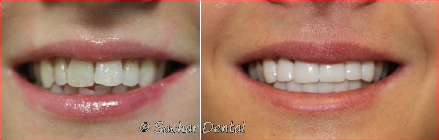 Before and after pictures of porcelain veneers