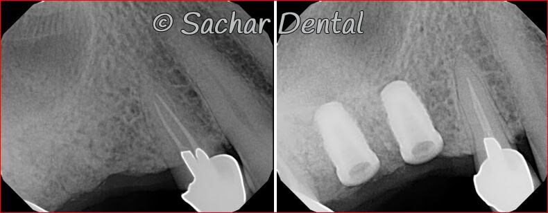 icture of Before and after x-rays of dental implants