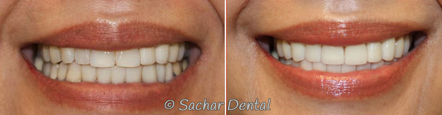 Before and after pictures of porcelain veneers and a bridge