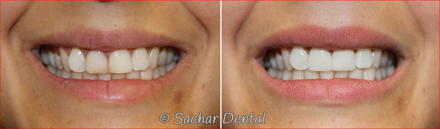 Before and after pictures of porcelain crowns