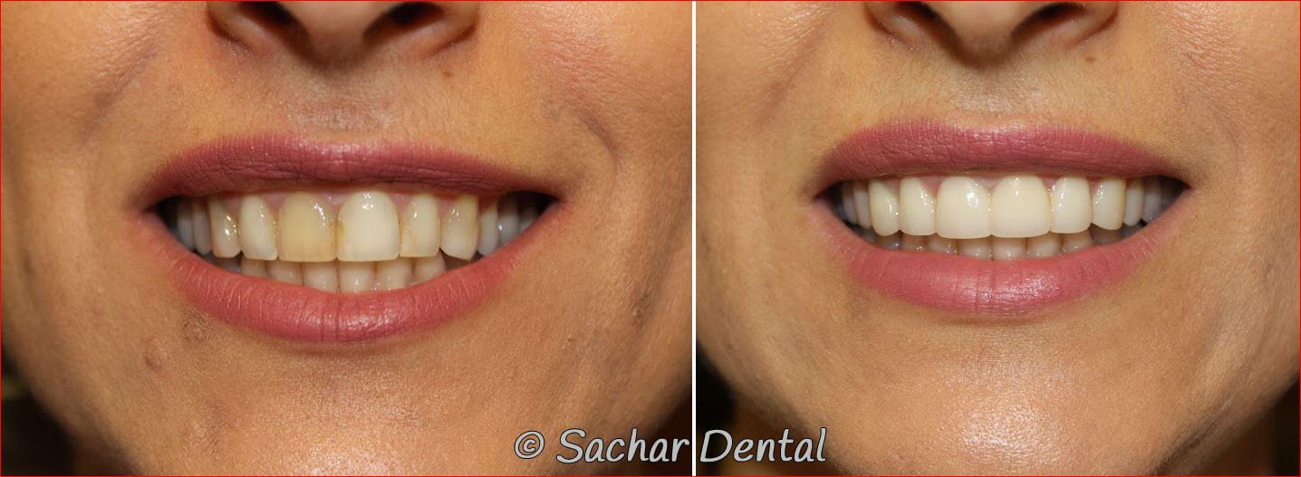 Top Cosmetic Dentist New York City