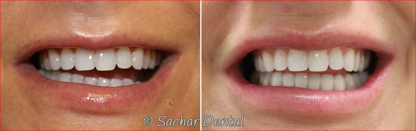 Before and after pictures of porcelain veneers and a 3 tooth bridge