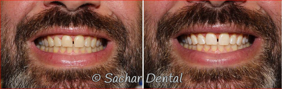 Before and after pictures of in office teeth whitening