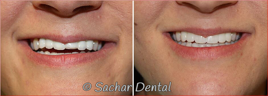 Best NYC Dentist for Cosmetic Dentistry