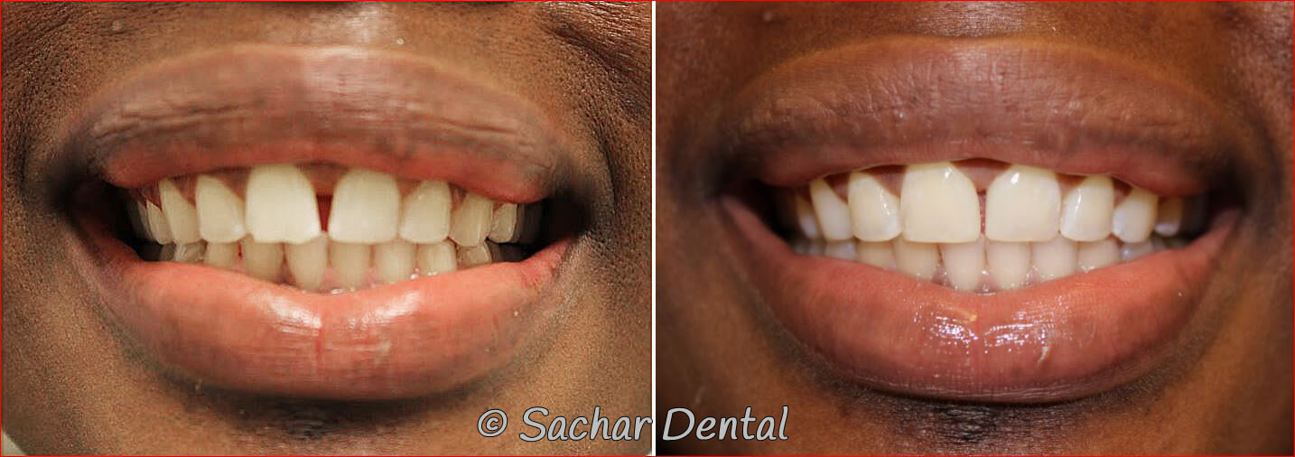 before and after pictures and resin bonding veneers