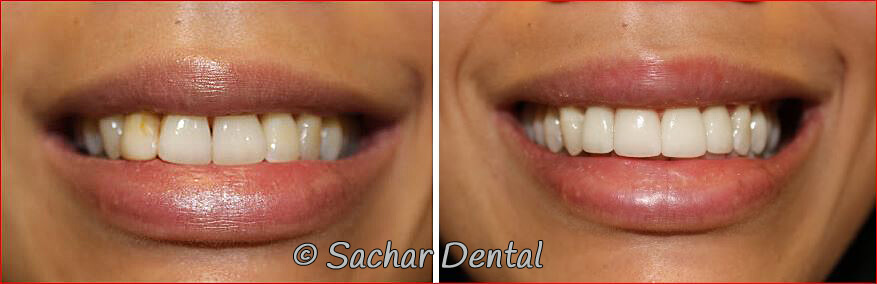 Before and after pictures of Cosmetic Dentistry NYC
