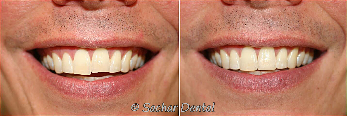 Before and after pictures of resin bonding of chipped teeth