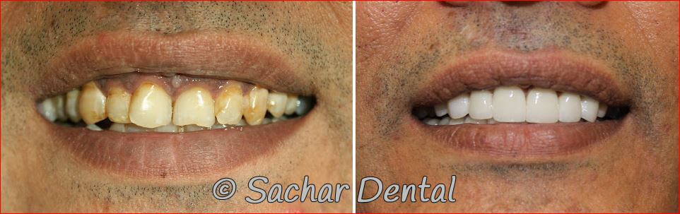 Cosmetic Dentistry NYC Before and after pictures of smile makeover with porcelain veneers