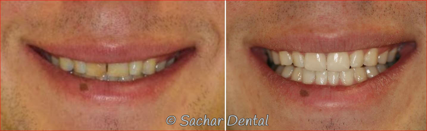 Before and after pictures of porcelain crown and porcelain veneer