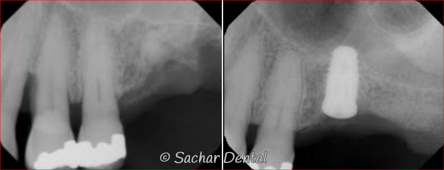 NYC Dental Implants / Sachar Dental NYC