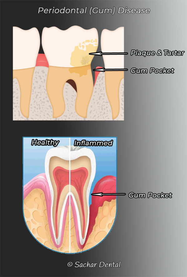 Picture of diagram of periodontal disease, two pictures