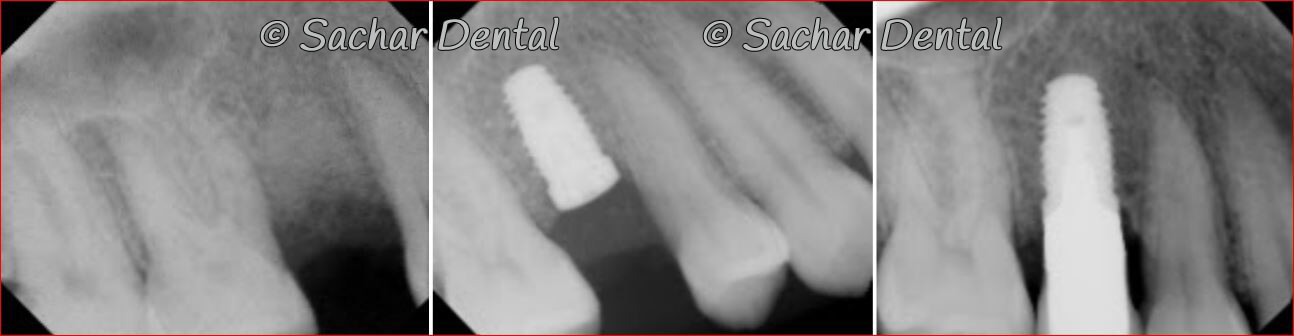 Picture of the x-ray with a bone graft and implant crown