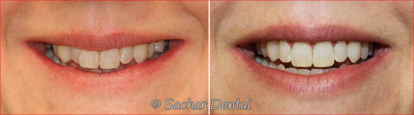 Cosmetic Dentistry at Sachar Dental NYC
