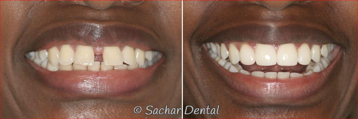 Sachar Dental NYC Cosmetic Dentistry