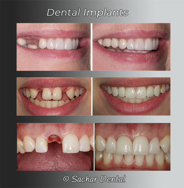 Picture of before and after dental implants for missing teeth 3 different patients