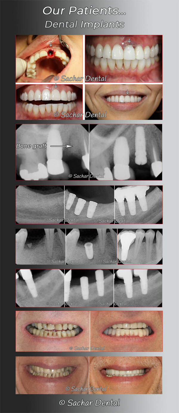 Picture description: Before and after picture of our patients with dental implants multiple patients with x-rays and clinical pictures