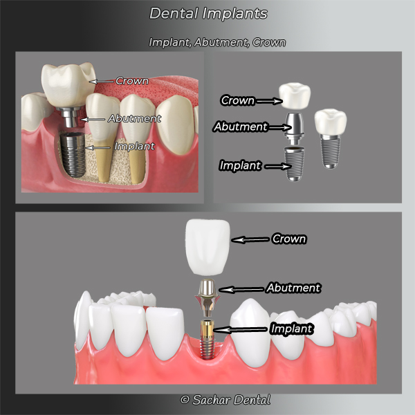 NYC Dentist for Implant Crown