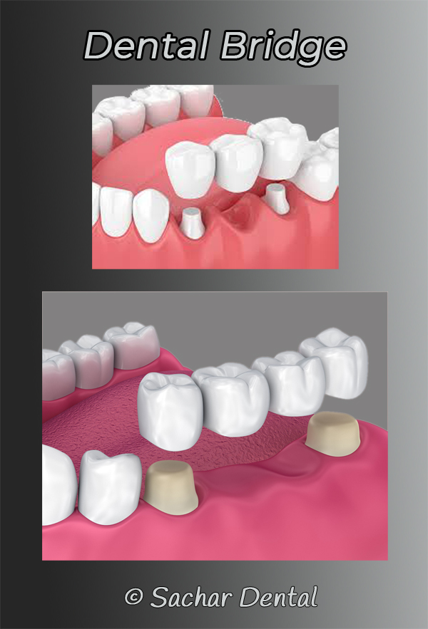 Dentist NYC to replace missing teeth