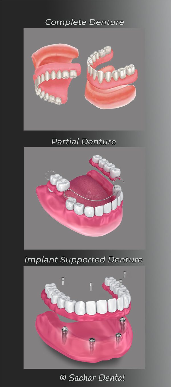 Dentist NYC for Dentures