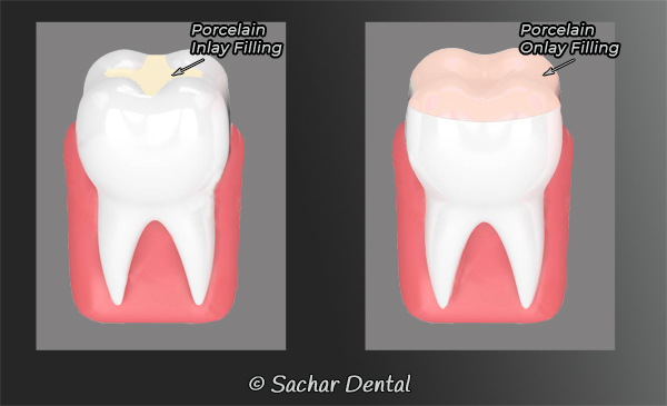 Dentist NYC cavity Fillings