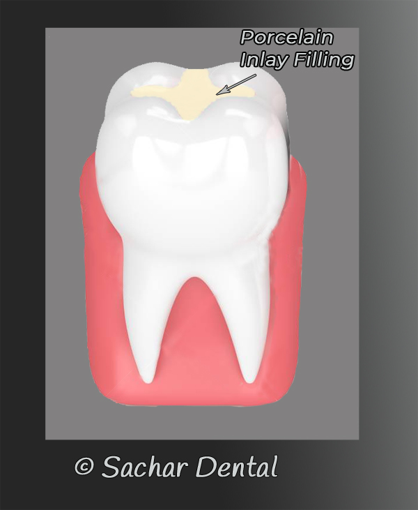 Dentist NYC for porcelain Inlay - diagram