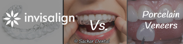 Picture of Invisalign trays and porcelain veneers in the background with text indicating Invisalign vs porcelain veneers