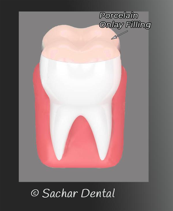 NYC Dentist for Porcelain Onlay - diagram