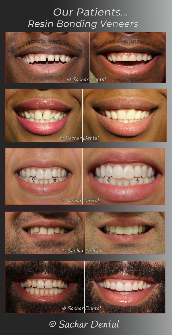 Picture of multiple before and after pictures of patients who have had resin bonding veneers