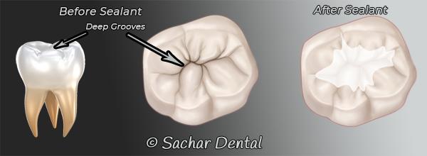Dentist NYC for dental sealants