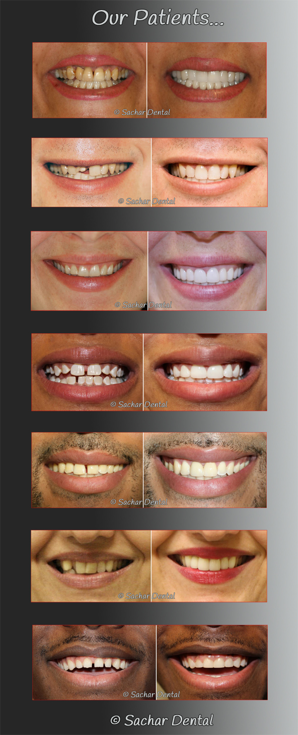 Best Manhattan Cosmetic Dentists in NYC