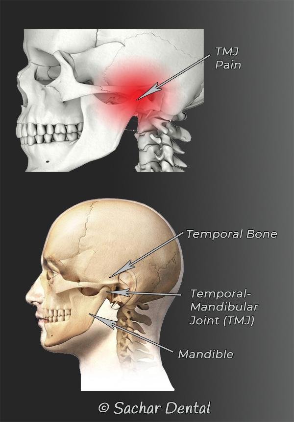 TMJ specialist NYC