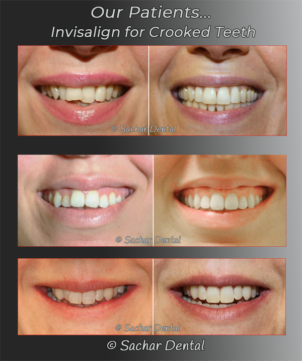 Picture of Invisalign before and after for crowded teeth 3 patients