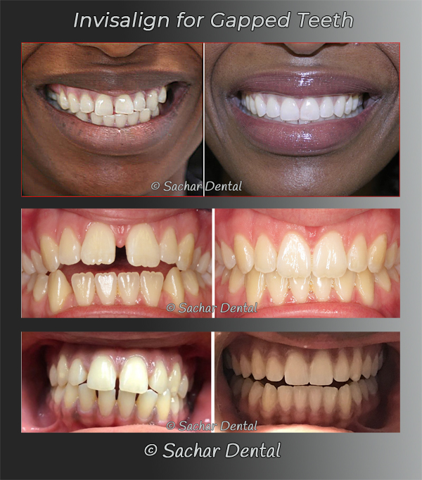 Picture of before and after Invisalign treatment for gapped teeth 3 patients
