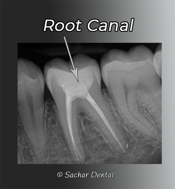 NYC Dentist for root canals- xray