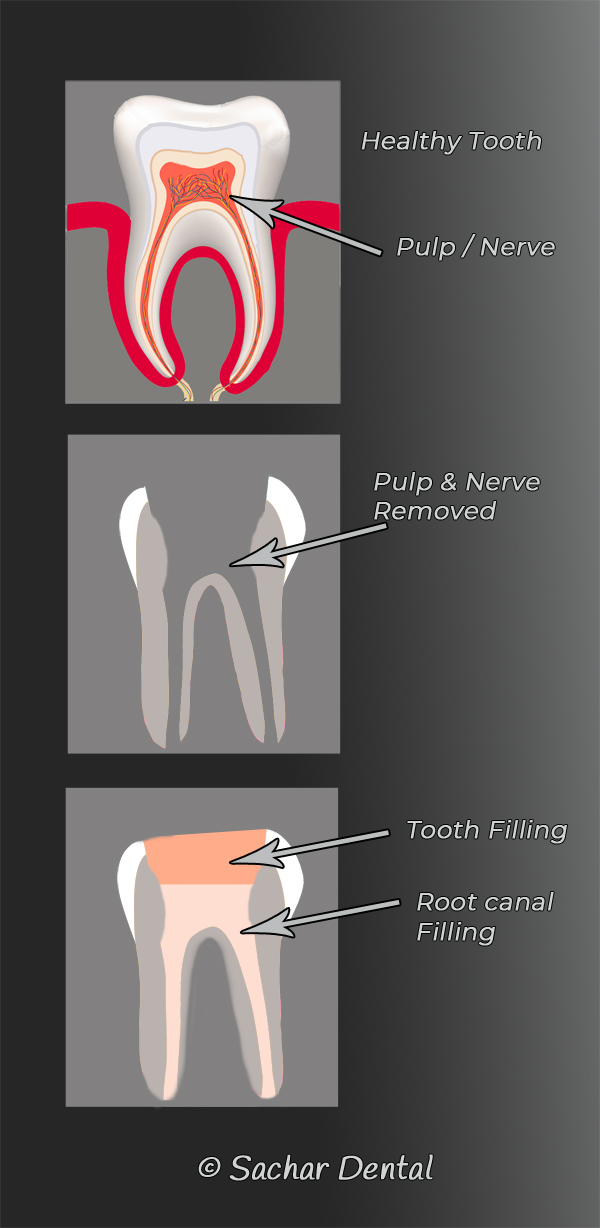 Dentist NYC- root canal diagram