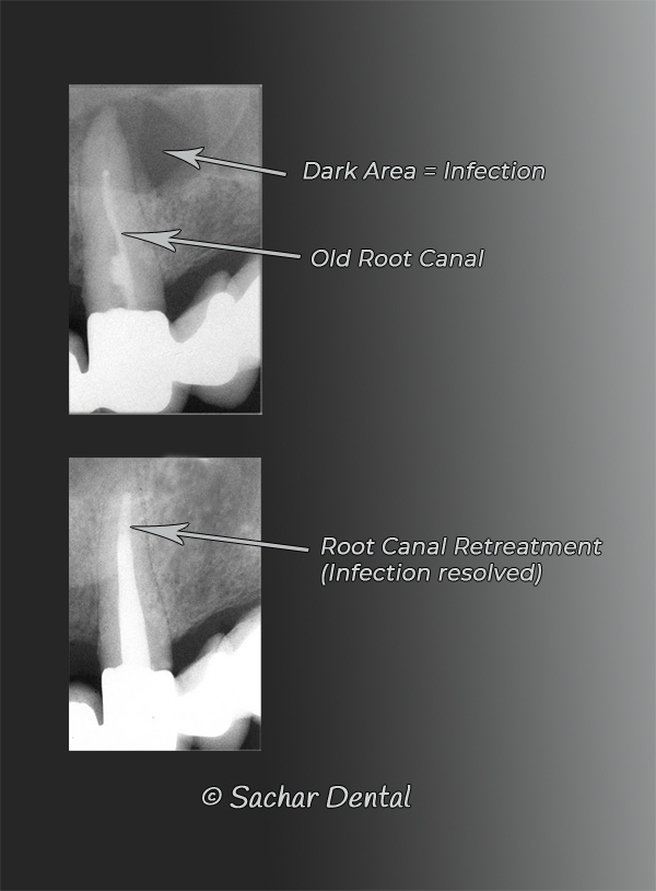 NYC Dentists for root canal - xray