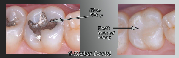 Dentist NYC for tooth colored fillings