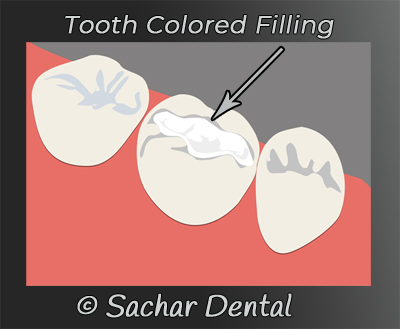 NYC Dentist for tooth colored fillings