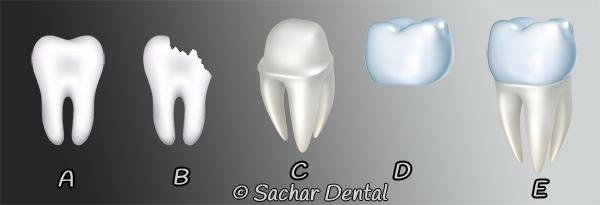 Dentist NYC for dental crown- diagram