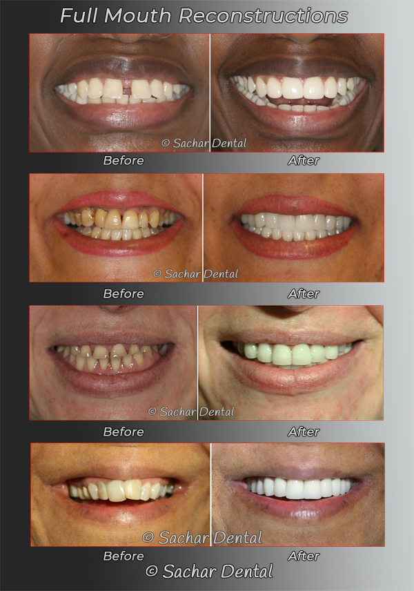 Dentist NYC for complex full mouth reconstruction dentistry before and after pictures