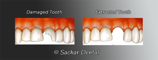 Dentist NYC for tooth extractions- diagram